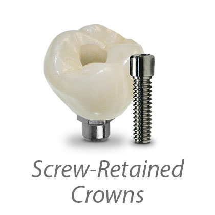 Screw-Retained Crowns