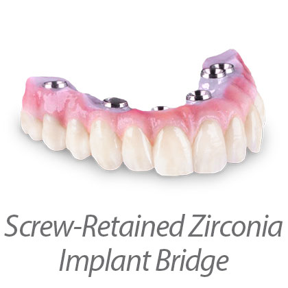 Screw Retained Zirconia Hybrid Bridge